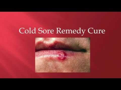 Cold sore remedies apple cider vinegar