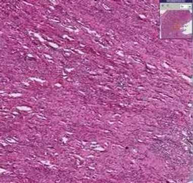 Histopathology Kidney-- Acute and chronic pyelonephritis