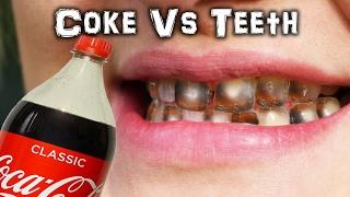 Can you PEEL a Tooth? Coke Vs Teeth