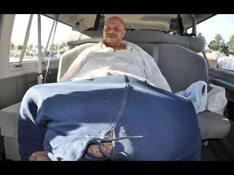 Man With World's Largest Scrotum Dies - Wesley Warren Jr
