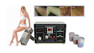 SDPL Laser and IPL Permanent Hair, Tattoo, Age Spot, Vein Removal Machine Instructions.