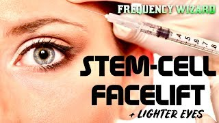 GET A STEM CELL FACELIFT FAST w/ LIGHTER EYES FAST! FORCED SUBLIMINAL FREQUENCY WIZARD
