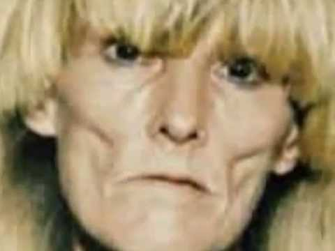Face of addiction - The effects of crystal meth