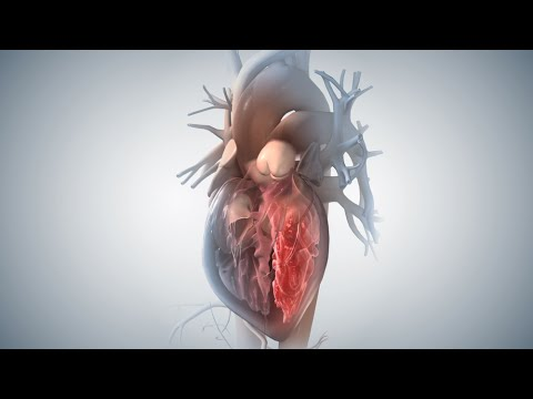Acute Coronary Syndrome And Heart Attack video