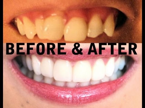 My TEETH (Before & After) Invisalign, Zoom Teeth Whitening, Veneers - AprilAthena7