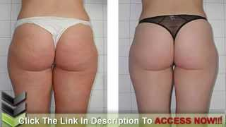 A Dummy-Proof Home Remedy For Cellulite