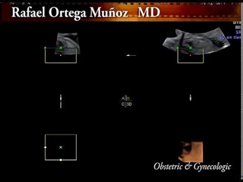 3 D y 4D Morfologica Valvulas cardiacas Clinica Ginecologica Dr. Rafael Ortega Muñoz Ciudad Real