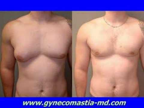 Dr Blau - Gynecomastia Surgery - Severe - Male Breast Reduction Surgery - Male Breast Treatment Cost