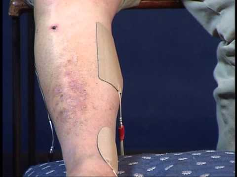 Dr Hendizadeh demonstrates Micro-Vascular Therapy for Neuropathy