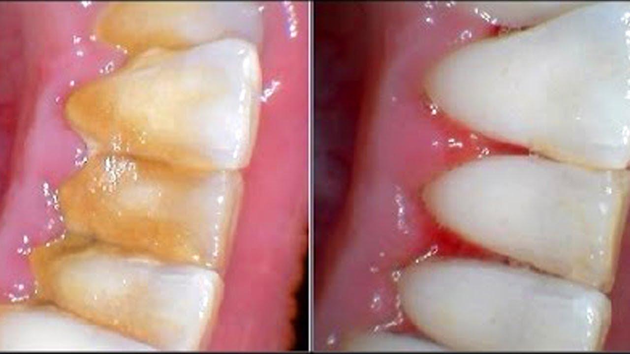 Чем почистить камень на зубах в домашних условиях 540
