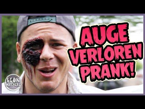 AUGE VERLOREN! PRANK