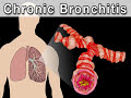 Understanding Chronic Obstructive Pulmonary Disease (COPD#1)