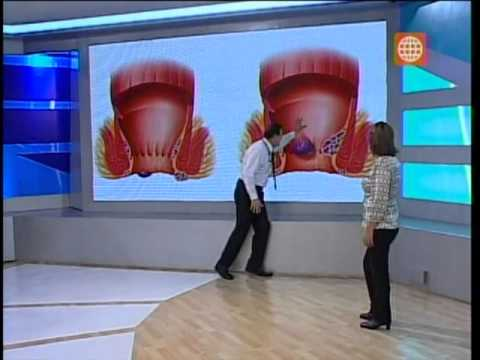 Dr. TV Perú (09-07-2013) - B1 - tema del día: Hemorroides