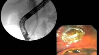 WallFlex® Biliary Metal Stent animation with clinical footage