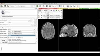 image registration in 3d slicer, Affine Registration