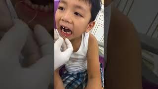 nhổ răng sữa cho bé hài hước do    Bác sỹ Đỗ Hải Đăng 0979001980
