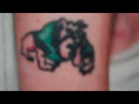 Green, Black, & Red Ink Tattoo Removal @ Tattoo Removal Laser Clinic in San