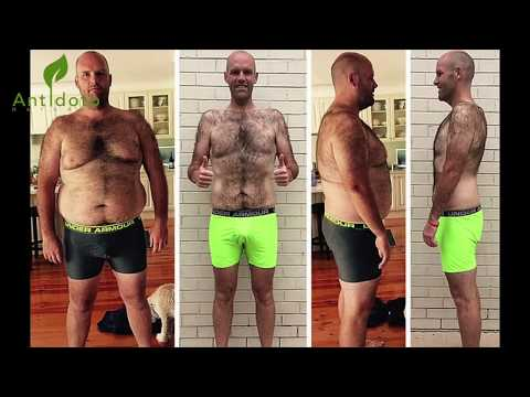 Hizo Dieta Extrema Y Sólo Comió Patatas Durante 43 Días, Quedo Irreconocible!
