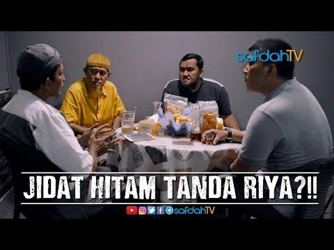 Bincang Santai: Jidat Hitam Tanda Riya?!! - Ustadz Badru Salam, Lc