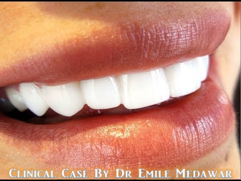 Dental Laser gummy smile Beirut Lebanon Hollywood smile style dental clinic Beirut Lebanon