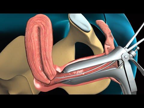 Видео матка у гинеколога Вашем