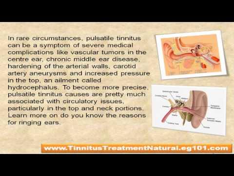 Natural treatment for pulsatile tinnitus