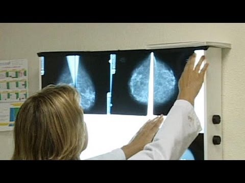 Britain offers preventive drug for breast cancer