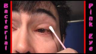 Severe Bacterial Pink Eye Conjunctivitis treatment part 3
