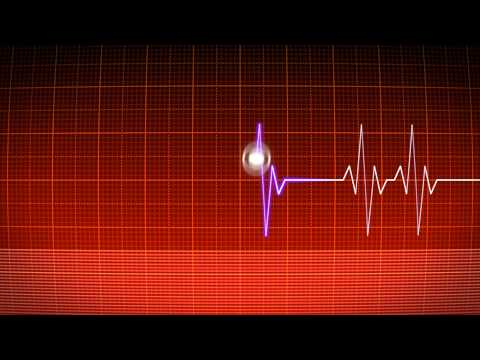 After Effects ECG Heart monitor