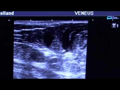 tumescent anesthesia during VNUS ClosureFast Procedure