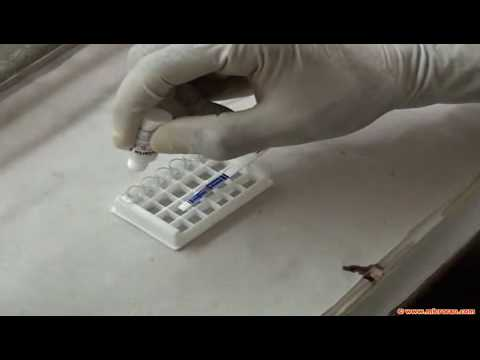 Rapid malaria test