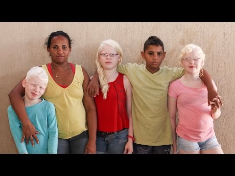 My Albino Children: Black Brazilian Family Have Three White-skinned Children video