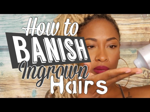 5 Steps to BANISH Ingrown Hairs that WORKS