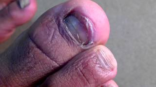 (GROSS ALERT) Fungal Nail Infection- If you don