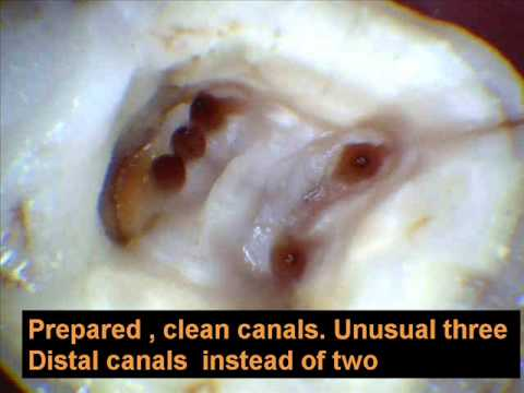 RCT(root canal treatment ) of tooth in jaipur india.wmv