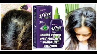 HONEST REVIEW ON D'FREE ANTI DANDRUFF SOLUTION | 2016