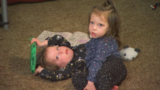 Parents Fought to Save Conjoined Twin Girls