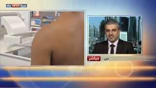 الفحص الدوري يقلل خطر سرطان الثدي