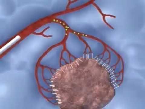 Embolizacao de mioma do utero