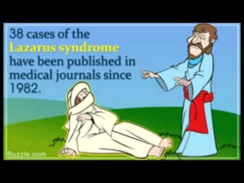 All About the Lazarus Syndrome