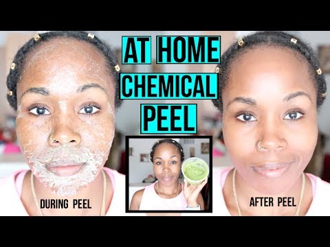 HOW TO Make a NATURAL Chemical Peel AT HOME   ERASE ACNE. WRINKLES & DARK SPOTS