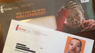 Parents Outraged After Charity Sends Out Offensive Cleft Lip Halloween Mailer