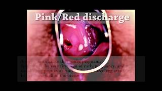 ||18+ ONLY || Don't watch if weak stomach || Vaginal Discharge Guide (HD) || Graphic