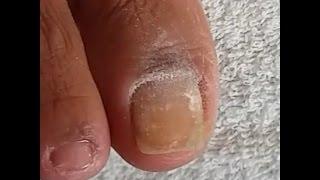 Remoção de manchas brancas nas unhas dos pés