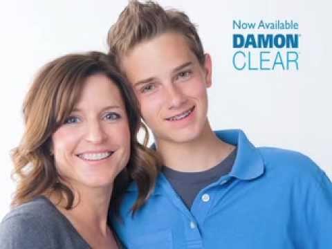 Damon Braces -- Fast, Comfortable Treatment & Extraordinary Results