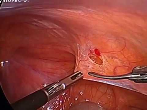 Паховая грыжа.Лапароскопическое грыжесечение. Laparoscopic inguinal hernia repair.