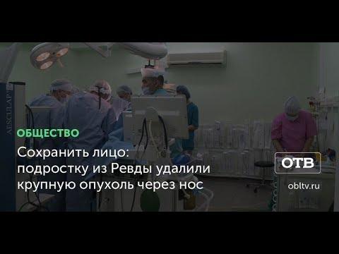 Сохранить лицо: подростку из Ревды удалили крупную опухоль через нос