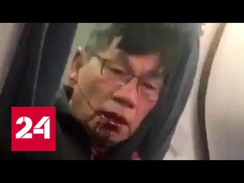 Адвокаты пострадавшего пассажира United Airlines готовятся вытрясти из авиакомпании солидную ком...