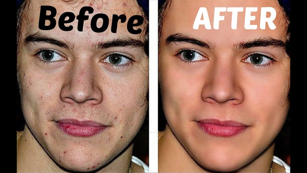 The Power Of Facetune Ft Harry Styles Before And After