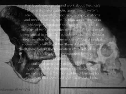 THE  HISTORY OF THE ELONGATED SKULLS peru &malta the connections
